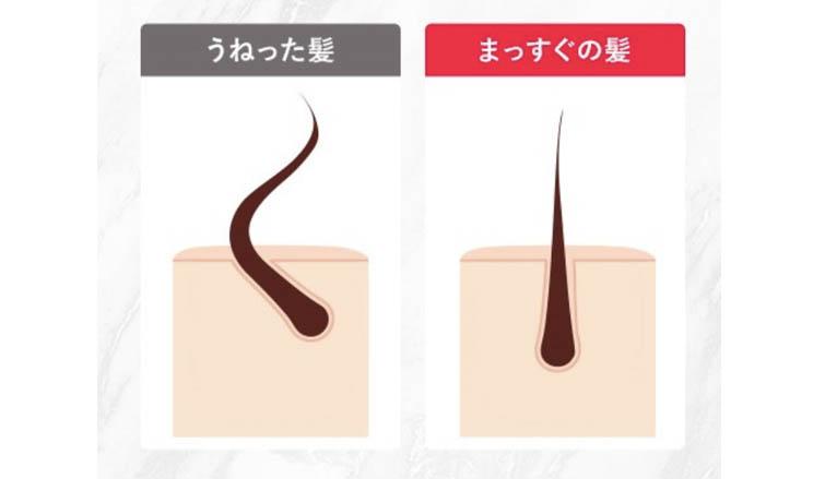 肌ナチュール炭酸ヘッドスパシャンプー&トリートメント_うねり髪原因